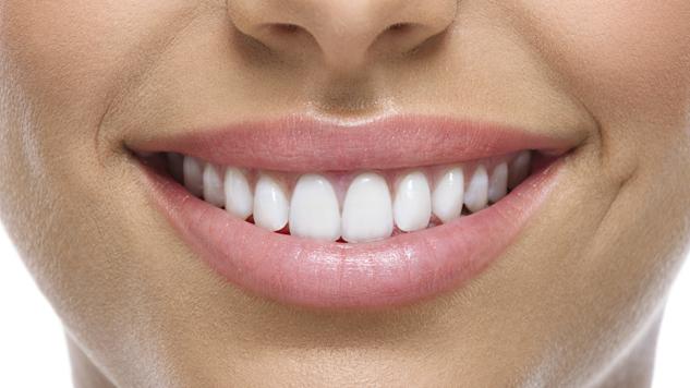 15% de descuento en blanqueamientos dentales